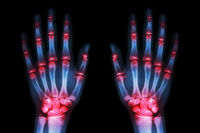 Artrosis y artritis: conoce sus diferencias y sus similitudes