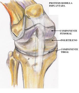 ¿Cuál es el mejor ejercicio después de una cirugía de rodilla?