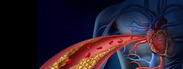 Lo que debes saber del colesterol: por qué hay uno bueno y otro malo y cómo regularlos