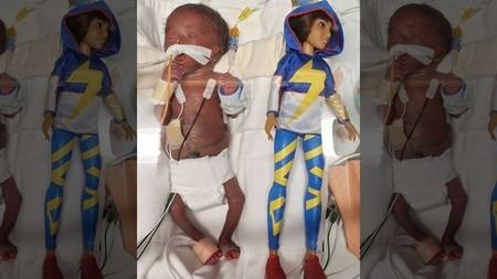 Dan de alta a una bebé prematura que pesó 370 gramos al nacer con casi 25 semanas de gestación