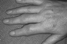 El consumo moderado de alcohol podría prevenir la artritis