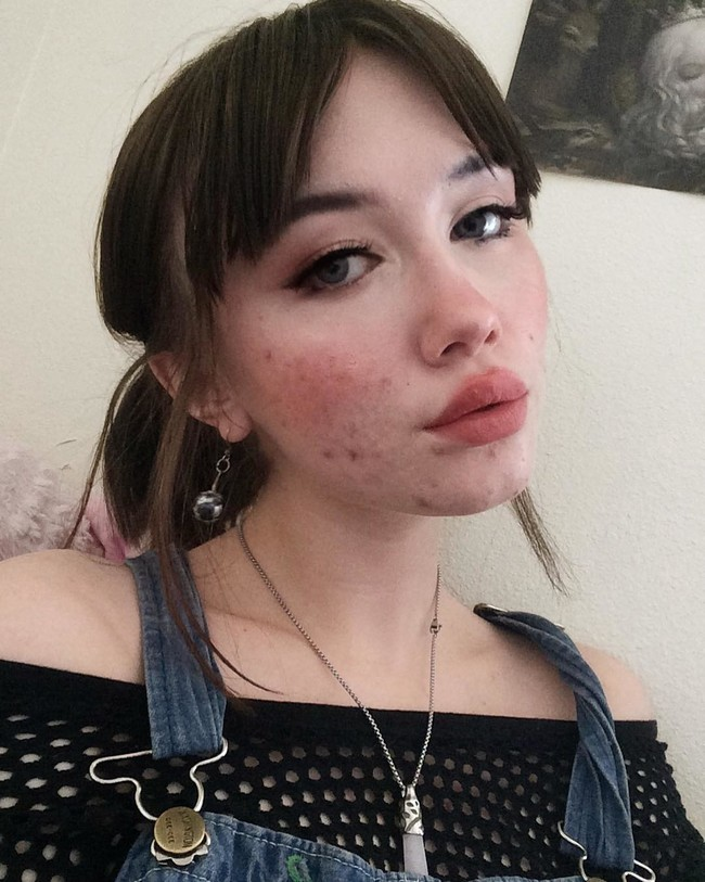 tendencia beauty body positive acne