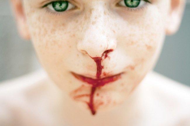 Sangre en la nariz