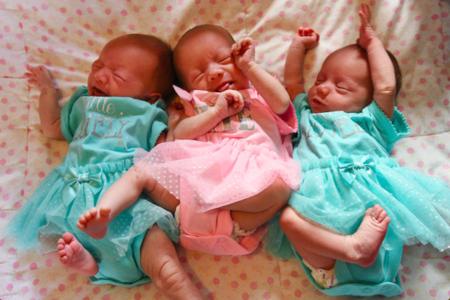El insólito caso de las trillizas MoMo: compartieron placenta y bolsa, y son idénticas