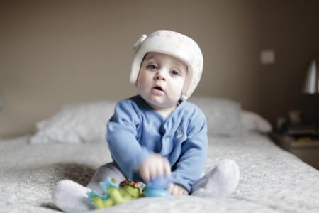 Bebé con plagiocefalia