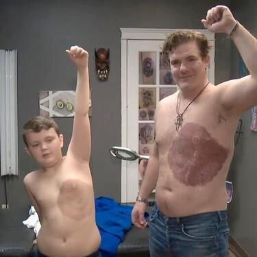 Un padre soporta 30 horas de dolor para tatuarse la gran mancha de nacimiento de su hijo y así ayudarle a superar su complejo