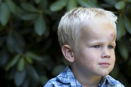 Golpes en la cabeza: qué hacer si el niño se ha golpeado y síntomas de alerta