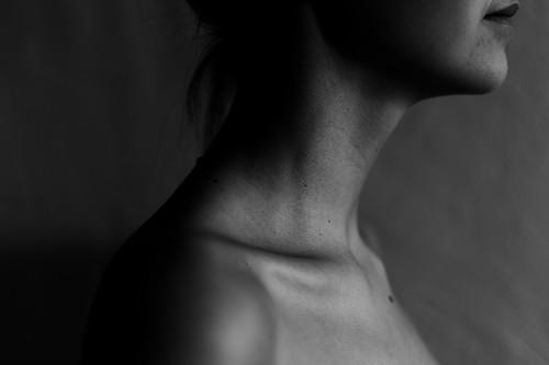 Todo lo que tienes que saber sobre hipotiroidismo (y cuál es la mejor opción para bajar de peso)