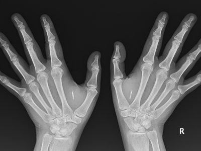 Implantes de chips corporales para tener poderes Jedi (o más o menos)