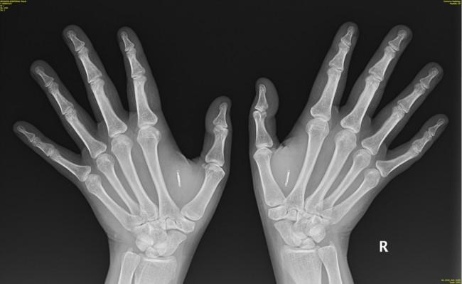 Implantes De Chip