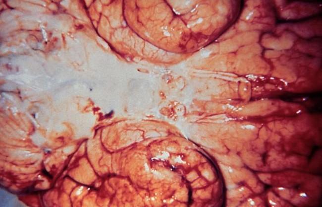 Haemophilus Influenzae Meningitis 5003 Lores