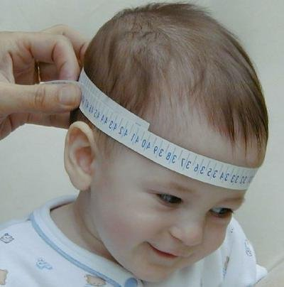 Perimetro craneal bebe