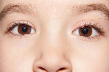 los orzuelos se contagian de un ojo a otro