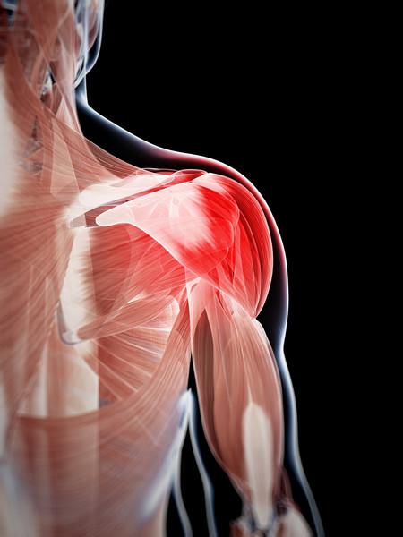 Lesión en el hombro
