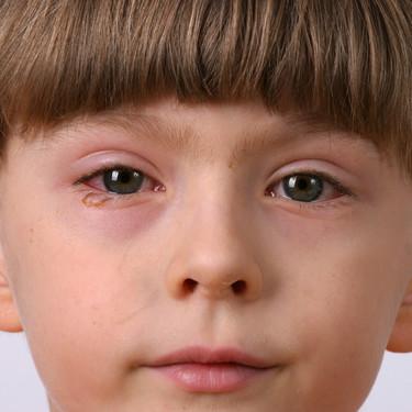 La salud ocular de los niños en tiempos de coronavirus: qué síntomas tener en cuenta y cómo cuidar los ojos de nuestros hijos