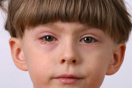 infecciones en los ojos y sus sintomas