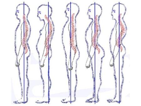 Las consecuencias de llevar una mala postura corporal