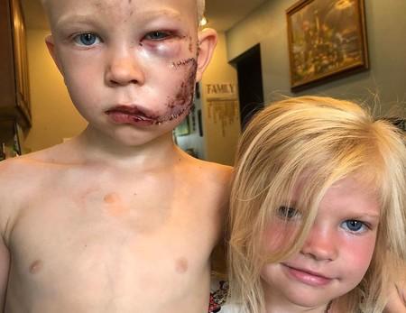 Un niño de seis años salva a su hermana del ataque de un perro y recibe el apoyo de sus héroes favoritos