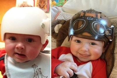 Una artista californiana decora los cascos correctores de los bebes con un increíble resultado