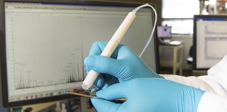 Este dispositivo detecta tejido canceroso en solo diez segundos