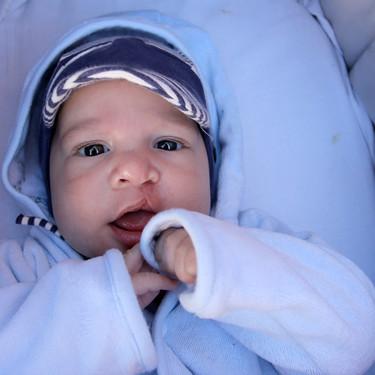Labio leporino y paladar hendido en el bebé, ¿se puede prevenir?