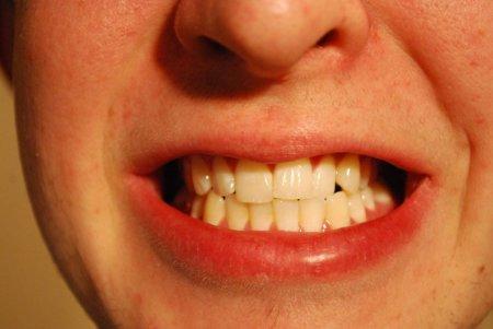 Los alimentos más peligrosos para nuestros dientes