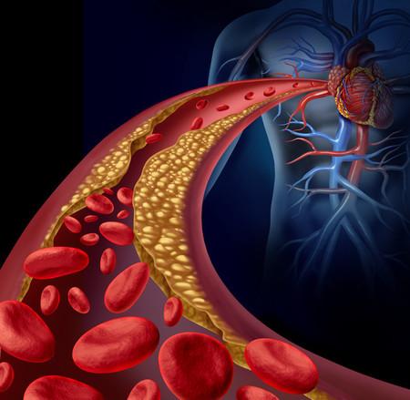 Colesterolsangre