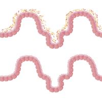 El nivel socioeconómico de los niños puede influir en los microorganismos de su sistema digestivo