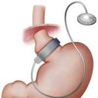 Lo que debemos saber de las cirugías bariátricas