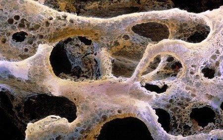 Científicos de la UNAM crean biocerámica que servirá para fortalecer los huesos