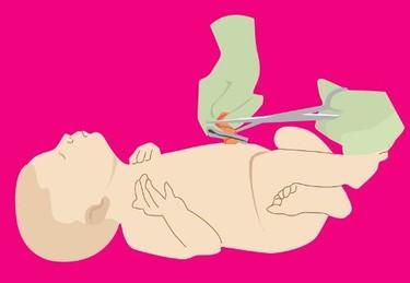 Sangrado leve del ombligo del recién nacido