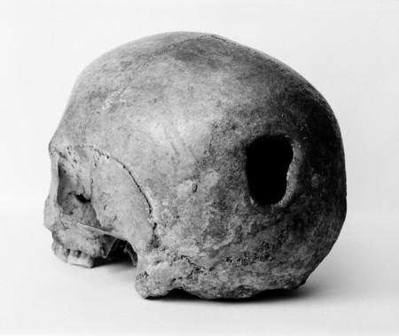 Edinburgh Skull Trepanning Showing Hole In Back Of Skull Wellcome M0009393