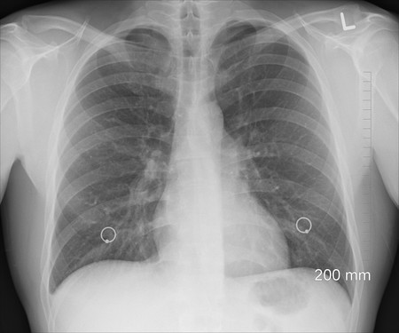 Diagnosis 1476620 1920