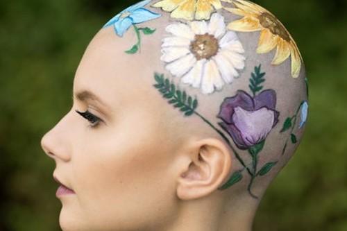 Tener alopecia no está reñido con ser preciosa, y la sesión de fotos de esta adolescente lo demuestra