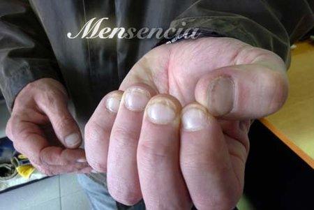 Uñas de gel para un hombre que muerde sus uñas: la solución