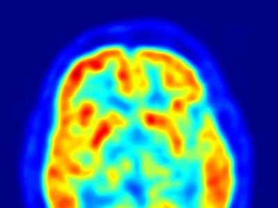 Estudio: En personas anoréxicas, el cerebro responde de manera diferente a la sensación de hambre