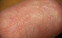 El extraño caso de los seres humanos sin huellas dactilares