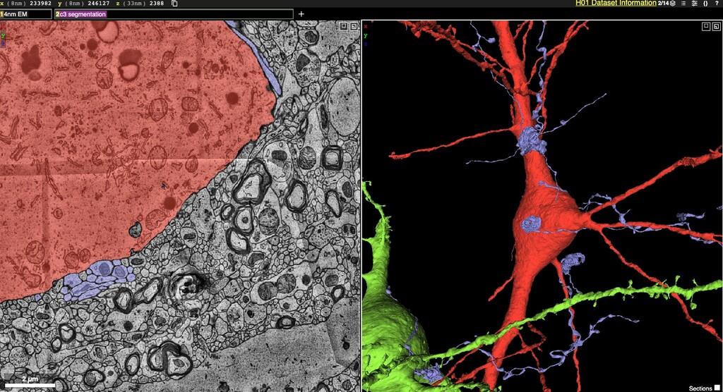 Navega por las profundidades del cerebro con el mapa de Google y Harvard, el más preciso jamás creado