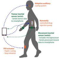 Un cinturón con sensores y estimuladores puede facilitar el tratamiento del Parkinson