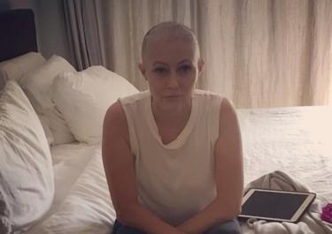 Estas valientes mujeres han desafiado las consecuencias del cáncer y se han mostrado públicamente sin pelo