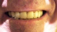 Algunos motivos por los que se debilitan nuestros dientes