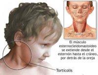 Tortícolis, una afección cada vez más frecuente
