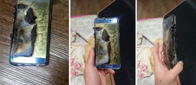 Note 7 Burn Explode