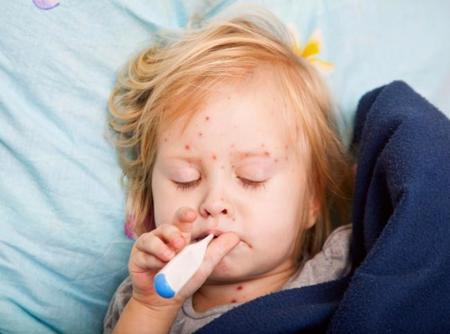 Sin vacunas de la varicela