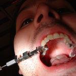 """Europa dice: """"No más amalgamas dentales de mercurio"""""""