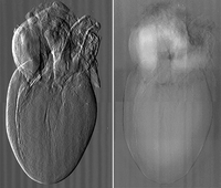 Tomografías capaces de mostrar tejidos y venas de forma nítida