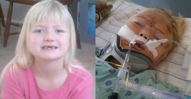 Unos padres advierten sobre la importancia de utilizar la silla del coche: el cinturón de seguridad cortó al medio el abdomen de su hija de 6 años