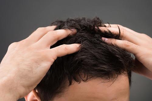 ¿Provoca la suplementación de creatina la caída del cabello?