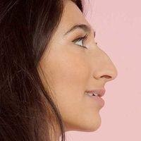 #SideProfileSelfie, el movimiento body-positive que pretende acabar con el estigma de la nariz grande