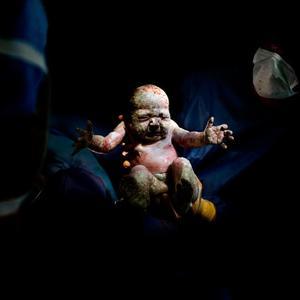 """""""César"""", una impactante serie de fotografías de bebés nacidos por cesárea"""
